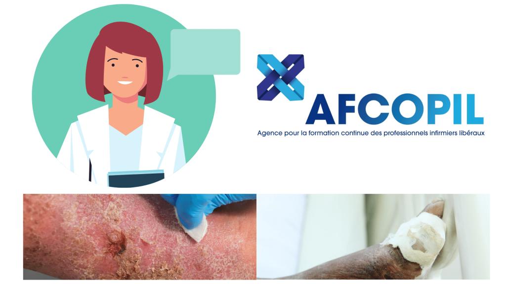 plaie et cicatrisation AFCOPIL formation infirmiere liberale